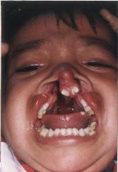 cleft-palate.JPG