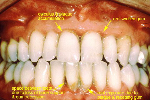periodontal-disease.jpg